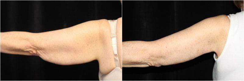 002_brachioplasty1-2