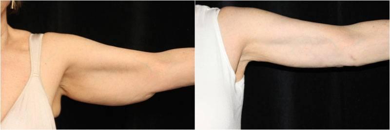 007_brachioplasty1-7