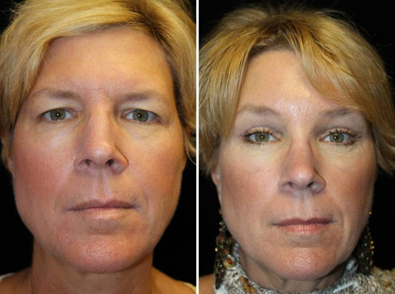 039_blepharoplasty-brow-lift-1-1