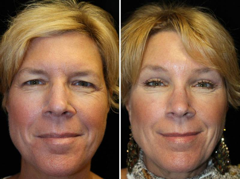042_blepharoplasty-brow-lift-1-4