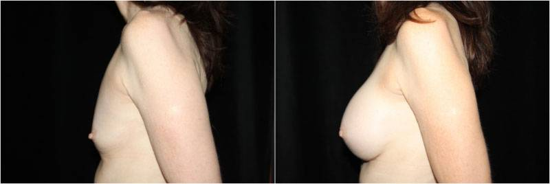 001_breast-augmentation1-5