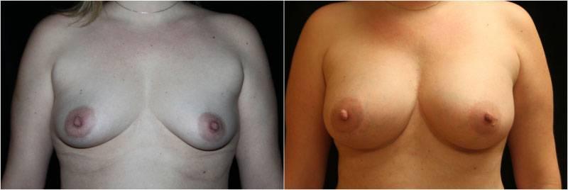 002_breast-augmentation1-1