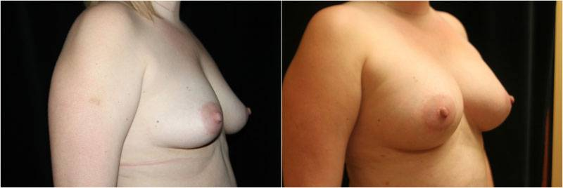 003_breast-augmentation1-2