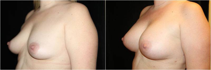 005_breast-augmentation1-4