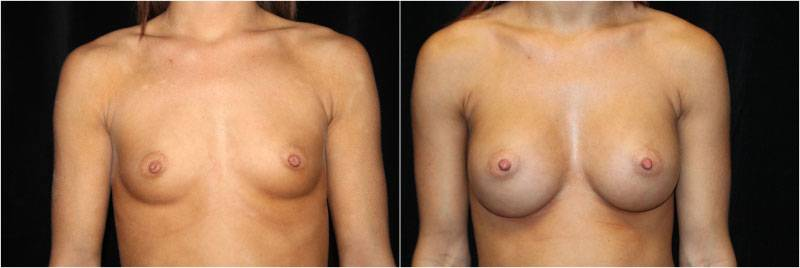 007_breast-augmentation-implants1-1