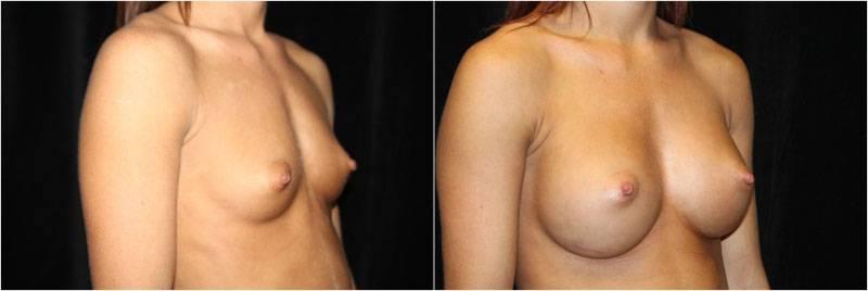 008_breast-augmentation-implants1-2