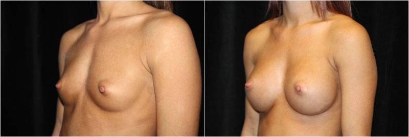 009_breast-augmentation-implants1-3