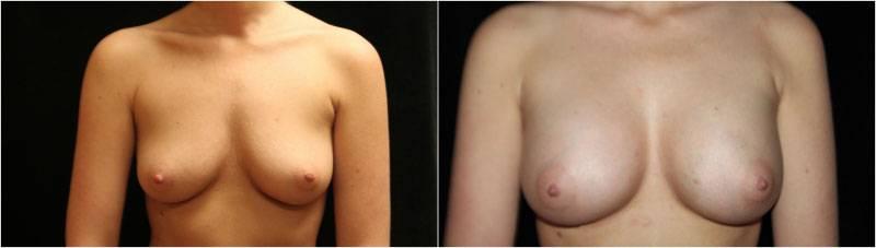 010_breast-augmentation-implants1-1-1