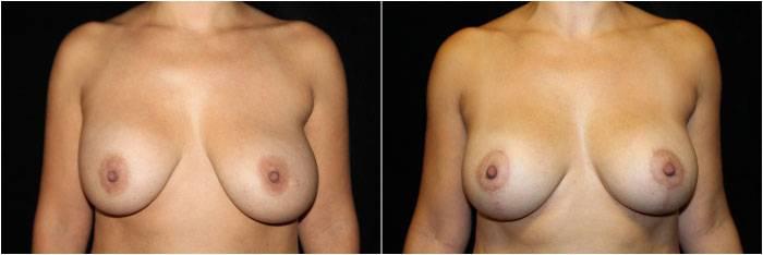 032_breast-augmentation-mastopexy1-1