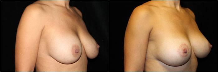 033_breast-augmentation-mastopexy1-2
