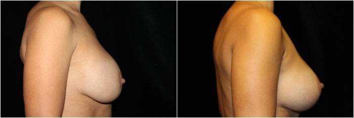 034_breast-augmentation-mastopexy1-3