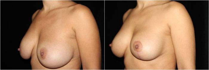 035_breast-augmentation-mastopexy1-4