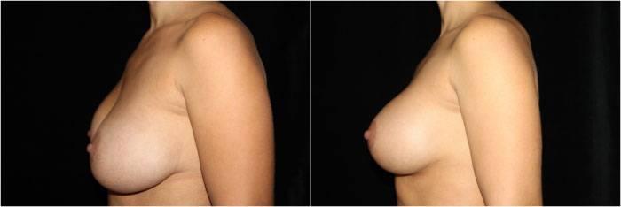036_breast-augmentation-mastopexy1-5