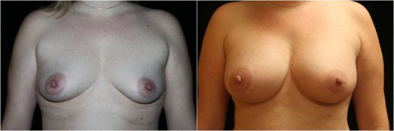 037_breast-augmentation-1-1