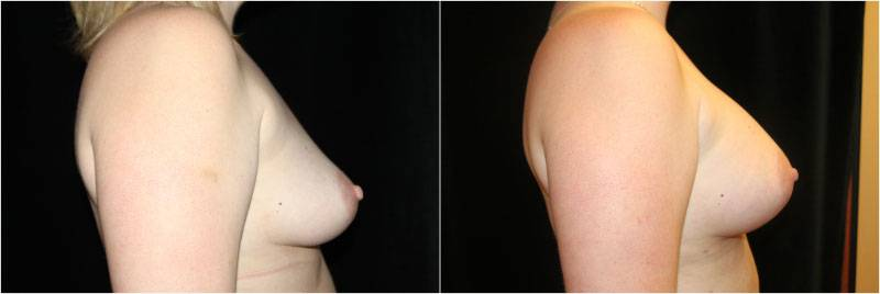040_breast-augmentation-1-4