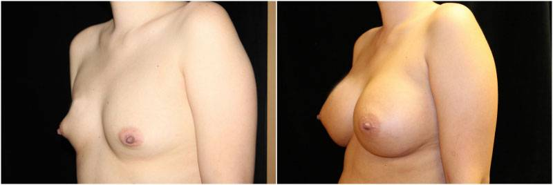044_breast-augmentation2-3
