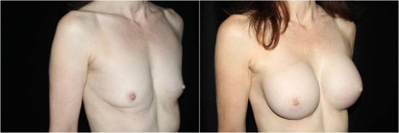 046_breast-augmentation1-2