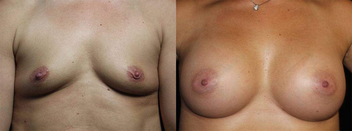 breast-aug-1