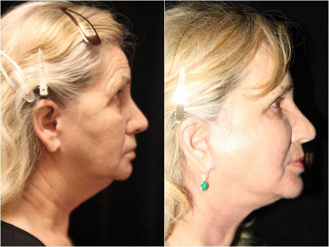 032_face-neck-lift-brow-lift-fx-laser1-3