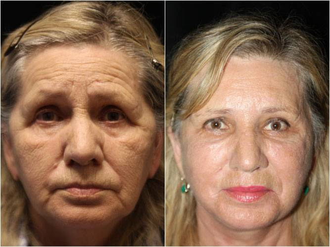 034_face-neck-lift-brow-lift-fx-laser1-1
