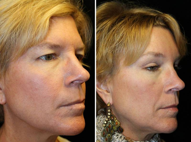 036_blepharoplasty-brow-lift-1-2