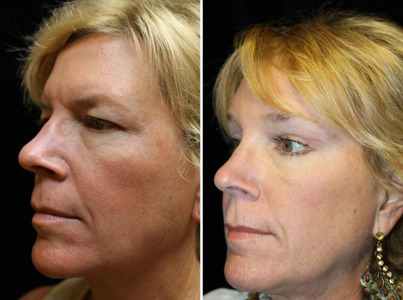 039_blepharoplasty-brow-lift-1-5