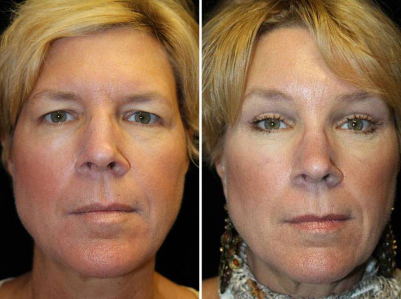 1_035_blepharoplasty-brow-lift-1-1