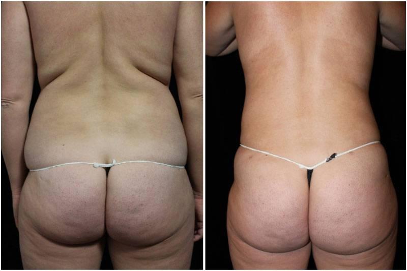 003_hm-gowda-liposuction-fat-graft-buttocks-p-10-3