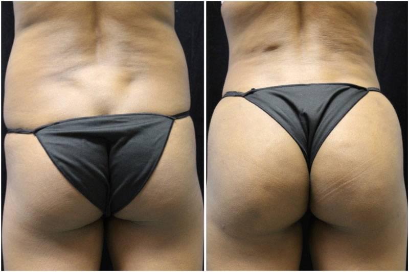 005_jn-gowda-liposuction-fat-graft-buttocks-p-11-2
