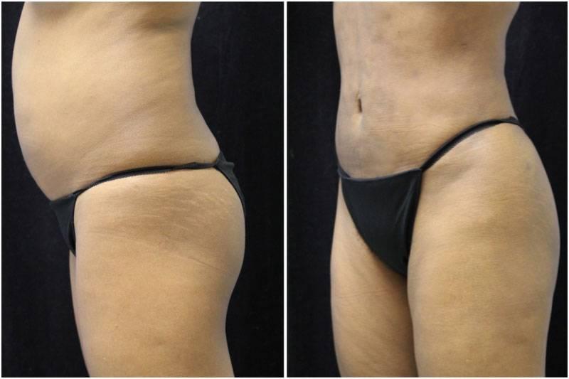 007_jn-gowda-liposuction-fat-graft-buttocks-p-11-4