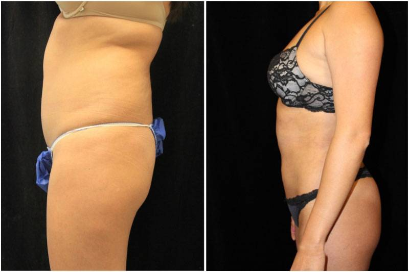009_js-gowda-liposuction-fat-graft-buttocks-p-12-2