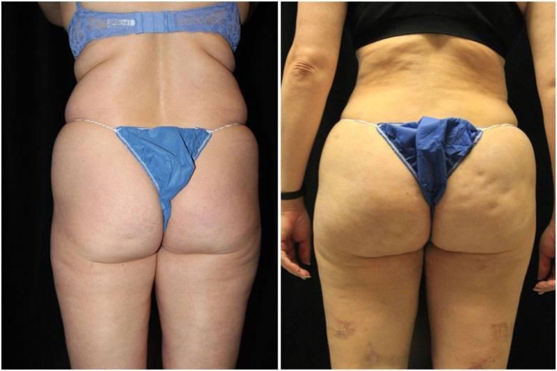 010_km-gowda-liposuction-fat-graft-buttocks-p-13-1