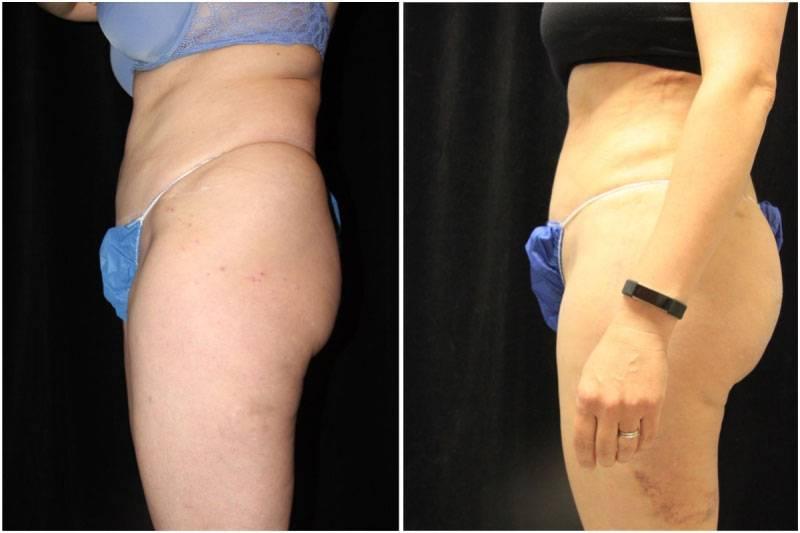 011_km-gowda-liposuction-fat-graft-buttocks-p-13-2