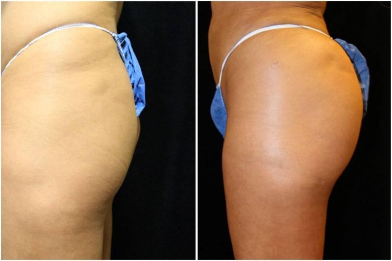 012_ms-gowda-fat-graft-buttocks-p-10-1