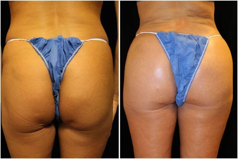 013_ms-gowda-fat-graft-buttocks-p-10-2