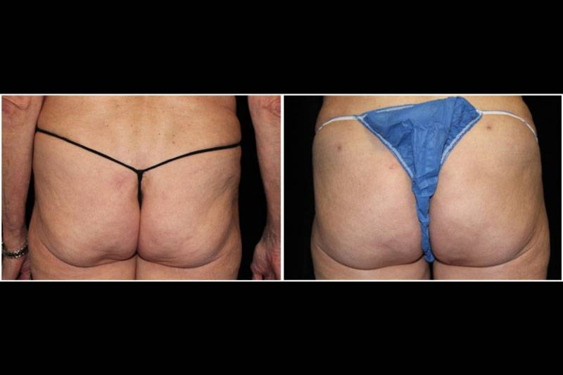 014_gl-gowda-fat-graft-buttocks-p-14-1-1