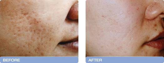 001_before_after_CoolTouch_CT3Plus_Laser_acne_scarring_reduction_1