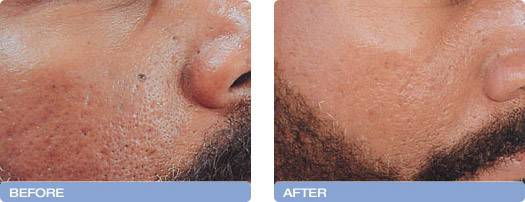 002_before_after_CoolTouch_CT3Plus_Laser_acne_scarring_reduction_2