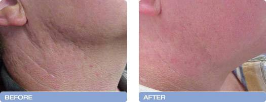003_before_after_CoolTouch_CT3Plus_Laser_acne_scarring_reduction_3