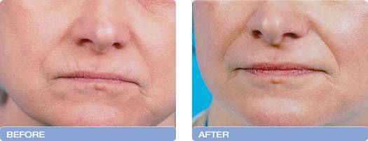 006_before_after_CoolTouch_CT3Plus_Laser_wrinkle_reduction_3