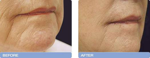 007_before_after_CoolTouch_CT3Plus_Laser_wrinkle_reduction_4