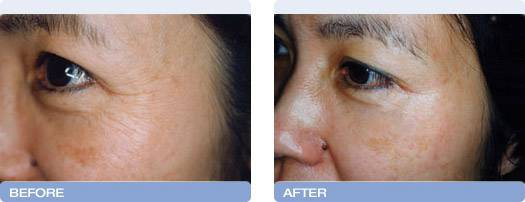 008_before_after_CoolTouch_CT3Plus_Laser_wrinkle_reduction_5
