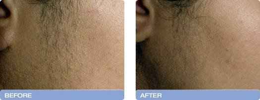 009_before_after_Varia_Laser_hair_removal_1