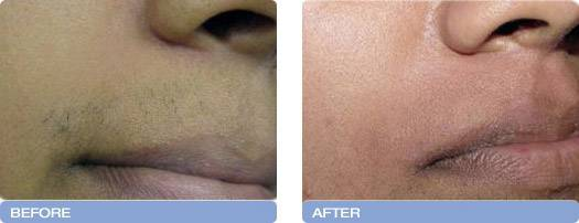 010_before_after_Varia_Laser_hair_removal_2