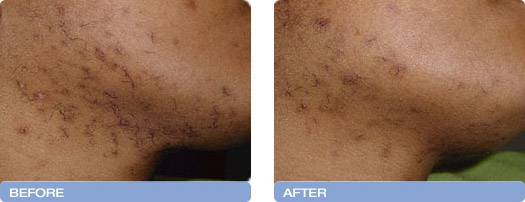 011_before_after_Varia_Laser_hair_removal_3