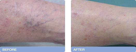 012_before_after_Varia_Laser_spider_vein_reduction_1
