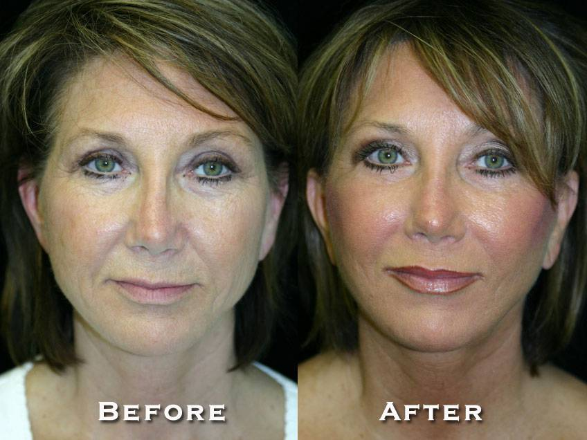 001_gowda_facelift_patient1_1