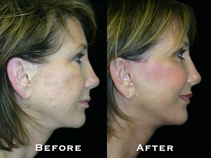 003_gowda_facelift_patient1_3