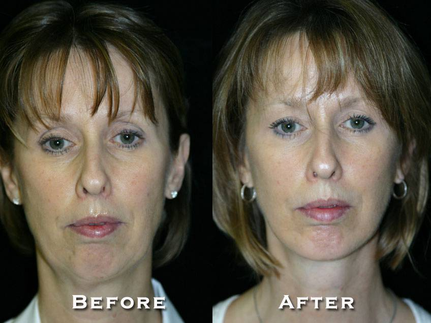004_gowda_facelift_patient2_1
