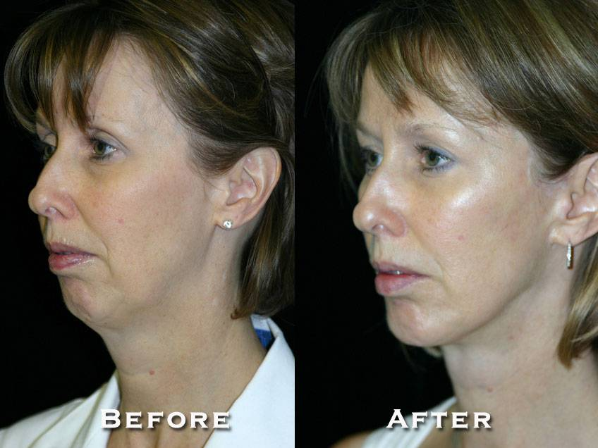 005_gowda_facelift_patient2_2